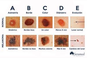 Identificar lunares y melanomas