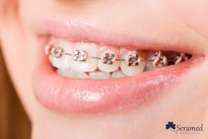 Ventajas de la ortodoncia infantil